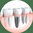 dentysta - implanty koszalin