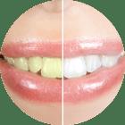 Laserowe wybielanie zębów
